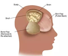 Awake Craniotomy Surgery for Brain Tumours
